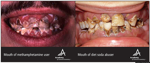 diet soda teeth